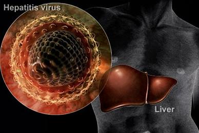 Pemicu Terjadinya Penyakit Liver