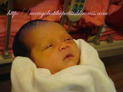 Obat Herbal Penyakit Hepatitis C Pada Bayi dan Anak
