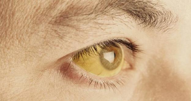penyebab penyakit kuning pada orang dewasa
